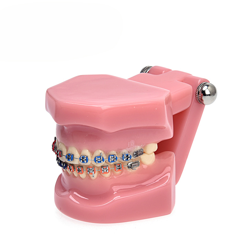 Modèle de dents dentaires 1 pièce modèle orthodontique dentaire pour la Communication du Patient modèle d'étude dentaire livraison gratuite