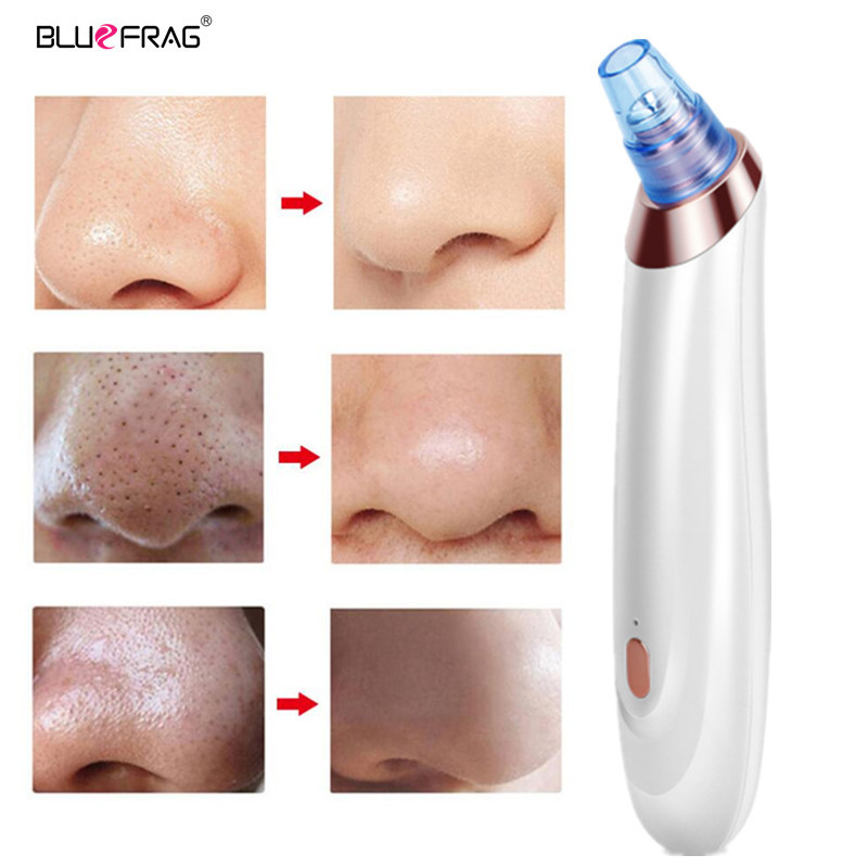 Pimple Tool Remover Blackhead Vacuum Acne Cleaner Pore USB Rechargeable Suction Point Black Head Extraction Skin Care Massager