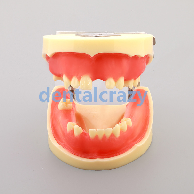 Modèle de pratique d'implant dentaire modèles de dents dentaires modèles d'outils M2002