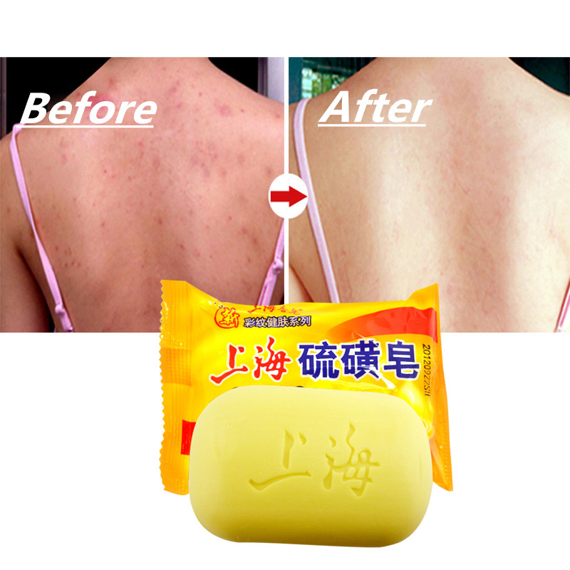 1pcs Shanghai Sulfur Soap Oil-control Acne Treatment Blackhead Remover Soap Whitening Cleanser Chinese Traditional Skin Care 85g