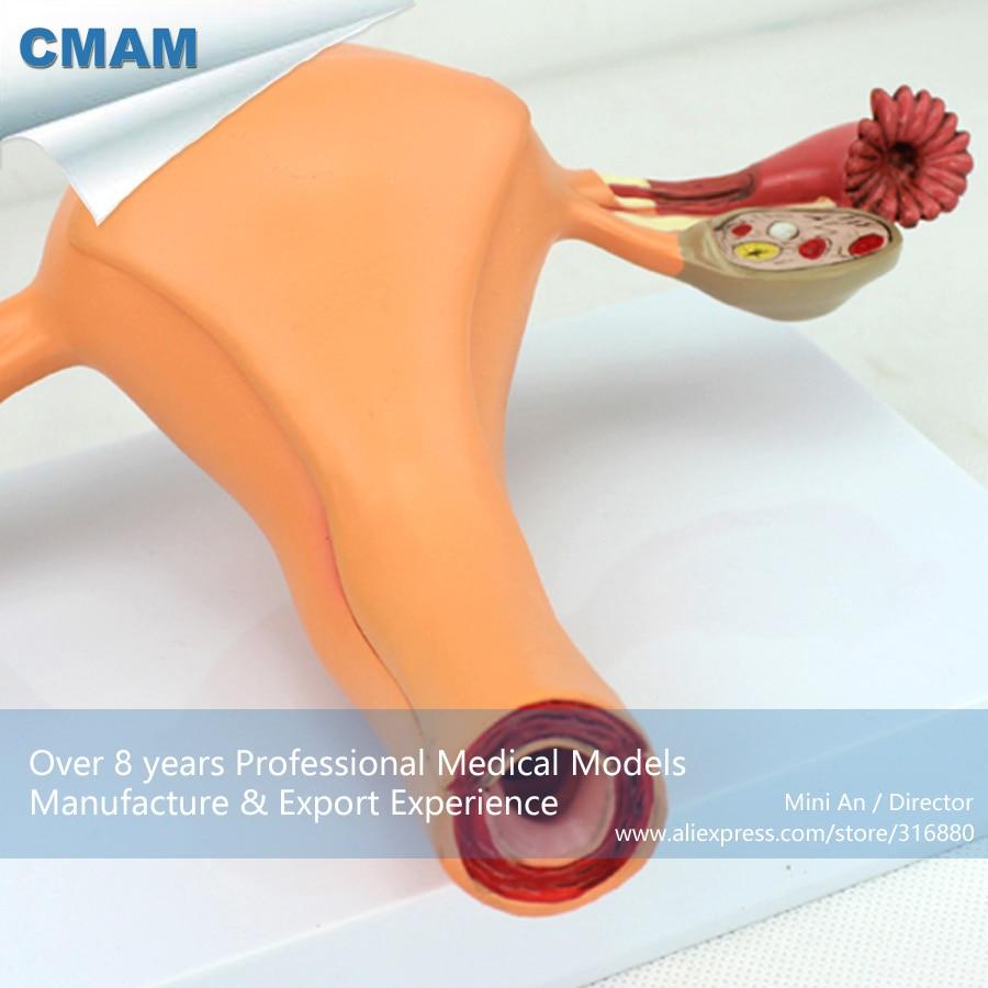 12442 CMAM ANATOMY04 Anatomischen Weibliche Genital System ...