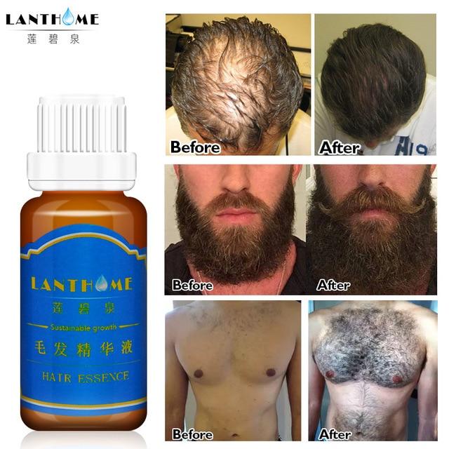 20ml Men Hair Beard Growth Thicker Essence Mustache Fast Grow
