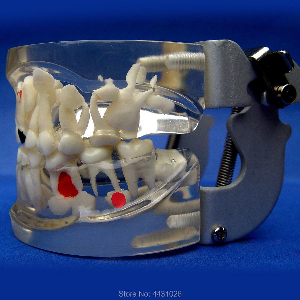 Dents pour enfants ENOVO modèle de dentition pathologique précoce développement des dents aides pédagogiques pour les soins dentaires pour nourrissons