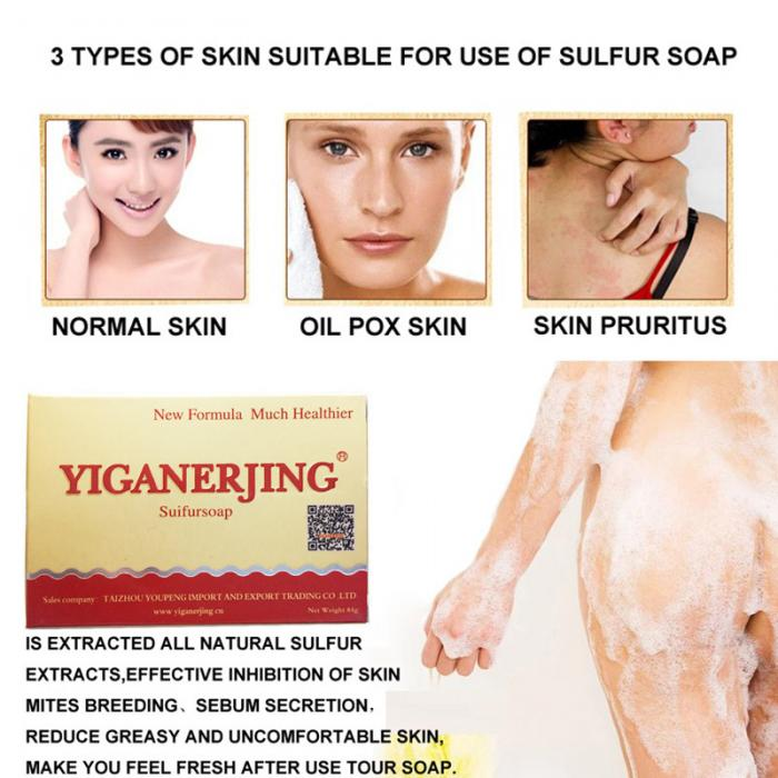 Cleansers Buy Cheap 84g Facial Cleaning Sulphur Soap Dermatitis Fungus Eczema Anti Bacteria Fungus Skin Care Bath Face Washing Whitening Soaps
