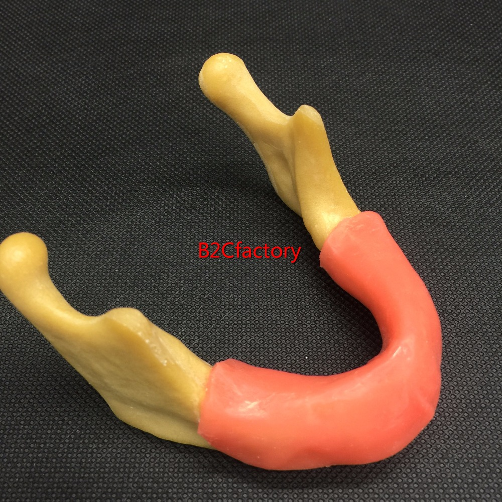 Mandible With Soft Tissue for Dental Implant Model Training Tool dental special bur for soft tissue and implant for cut dental papilla hyperplastic tissue lift gingival or implant position
