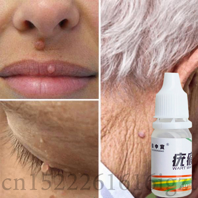 Skin Tag Mole Wart Remover Eye Skin Tag Remover 12 Hours Remover 10ml 3