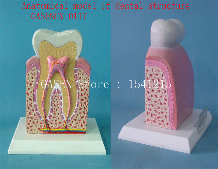 Nursing oral dental model Medical model Nursing tooth model Oral tooth Anatomical model of dental structure - GASENCX-0117 soarday tooth root canal restoration model oral dental training materials tooth nerve model