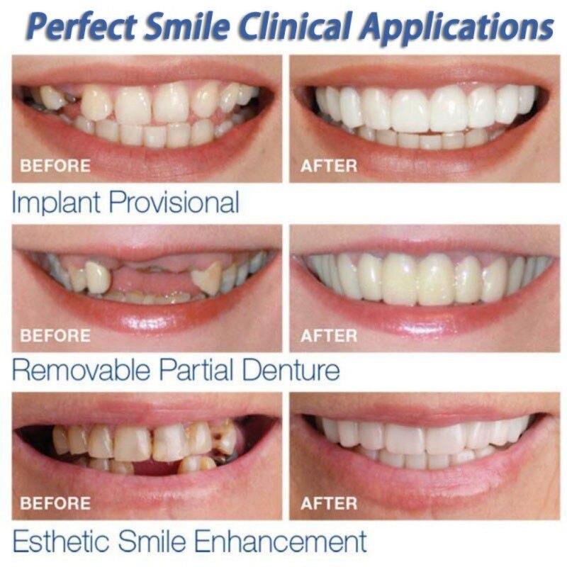 Teeth Cosmetic Instant Smile Comfort Fit Flex Cosmetic Teeth Denture Teeth Top Veneer Massage Relaxation 1
