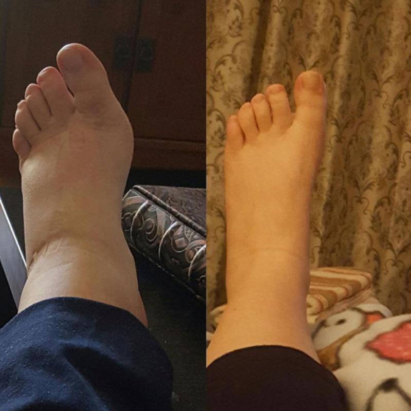 Новые унисекс носки компрессионные чулки давление варикозные вены чулок колено высокие ноги поддержка стрейч циркуляция под давлением #745