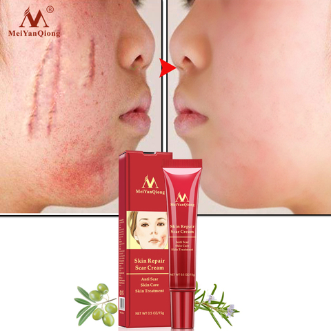 MeiYanQiong Eco-friendly Acne Scar Stretch Mark Repair Cream Treatment Blackhead Whitening Cream Skin Repair Face Cream TSLM2 Lahore