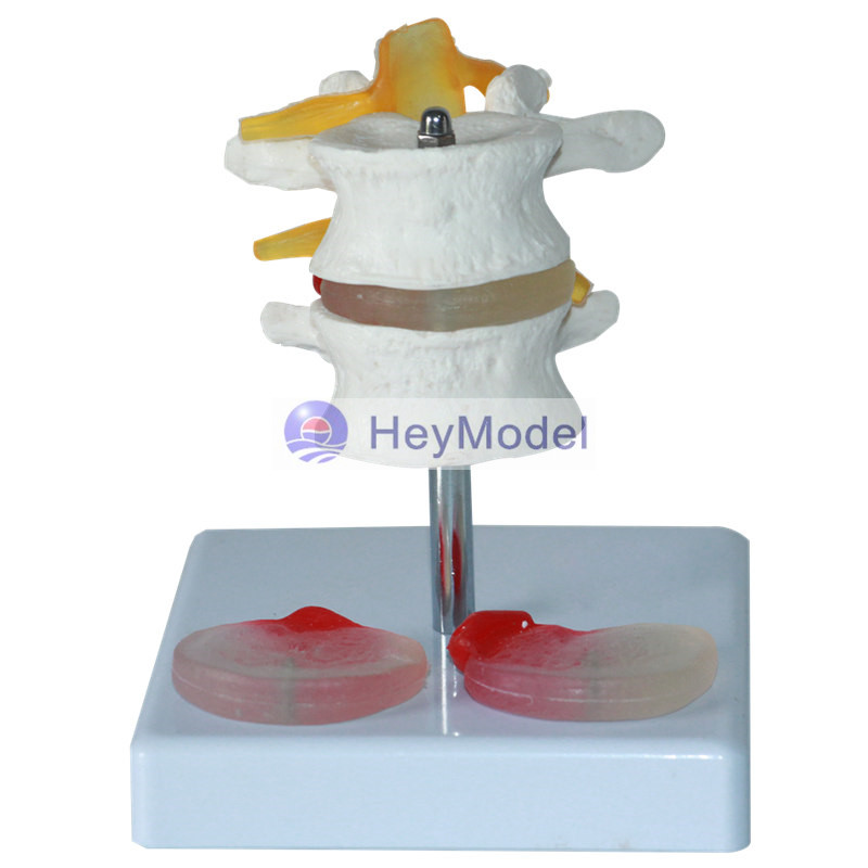 HeyModel Cervical spine model carotid spinal cord human skeletal model spine model cervical vertebra structural model HeyModel Cervical spine model carotid spinal cord human skeletal model spine model cervical vertebra structural model