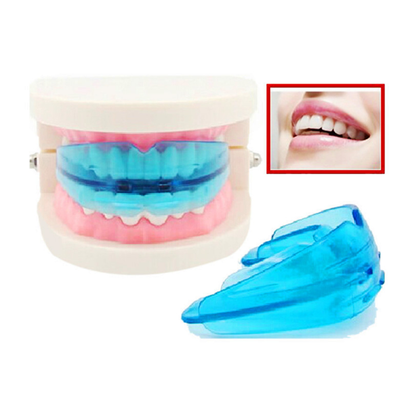 Orthodontic High-tech Research Braces
