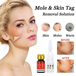 Removal Face Wart Tag Freckle Cream Removal Oil Mole Skin Tag Removal Solution Painless Mole Skin Dark Spot T
