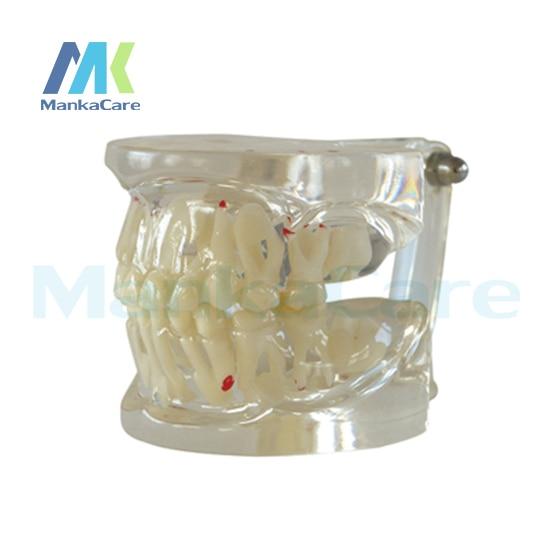 manka cuidar claro misturado idade modelo modelo modelo dente dentes orais