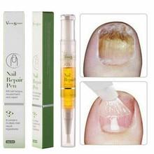 Nail Repair Treatment Liquid Pen Anti Fungal Onychomycosis Removal Essence
