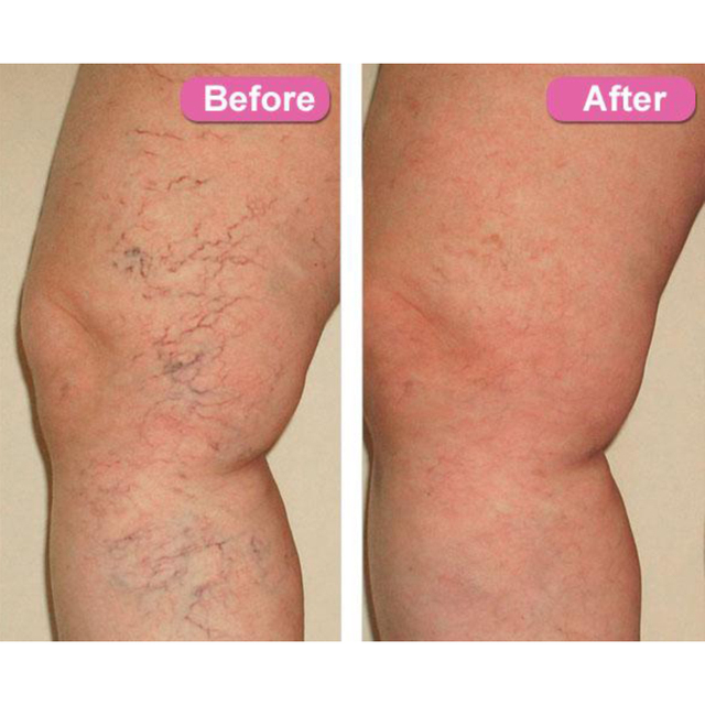Varicose Veins Treatment Cream Ointment Vasculitis Angiitis Phlebitis Spider Veins Pain Remedy Herbal Body Cream Drop Shipping 4