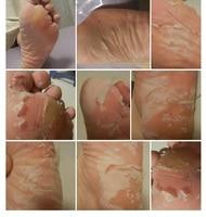 ноги по уходу за ребенком бамбук пилинг обновление маска омертвевшие клетки кожи наркотических кабель 5 пар = 10 шт