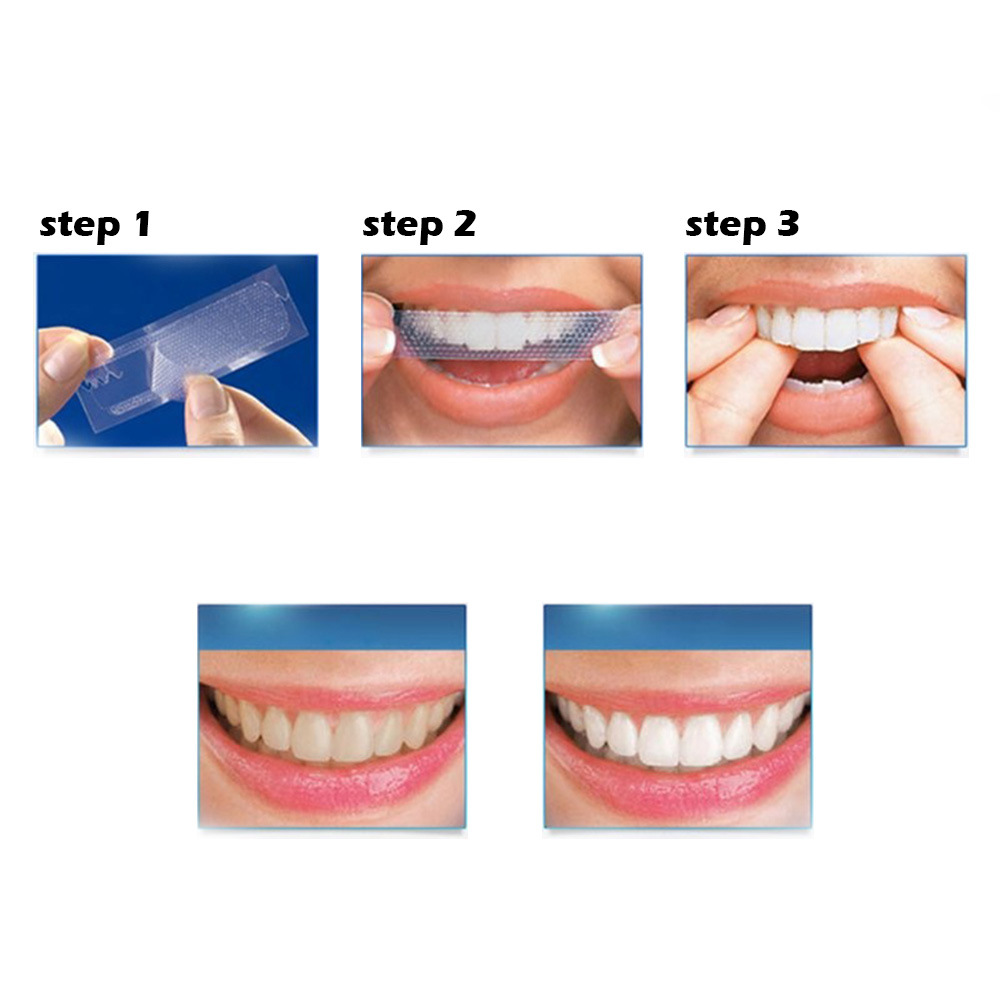 Advanced Teeth Whitening Strip 3D Super Gel Bleaching Teeth Whitening Oral Care Dental Hygiene Decontamination Cleaner 5 Pairs
