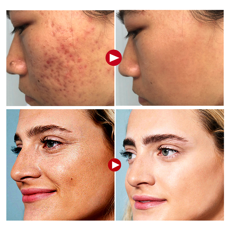 Face Face Active Collagen Silk Thread Ball Skin Care Essence Serum Anti-aging Smoothing Firming Moisturizing Fine Line Skin Serum
