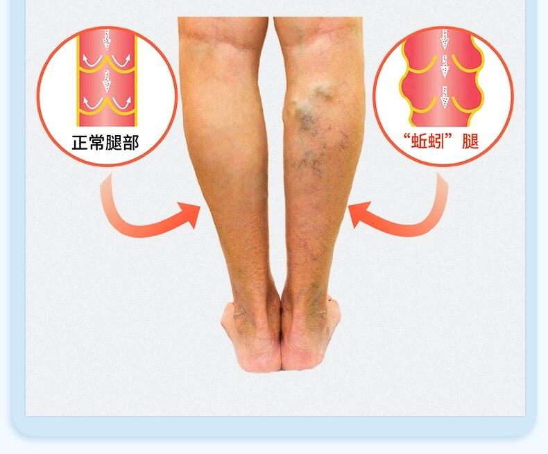 ce creme de la picioarele varicoase tratament varicoză varicoză laser preț