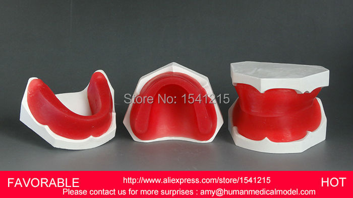 ORAL MODEL,TEETH ,MANDIBULAR IMPLANT DENTAL MODEL, ORAL TRAINING MODEL ,EDENTULOUS DENTAL WAX MODEL EMBANKMENT-GASEN-DEN024 teeth model blue dental orthodontics communication model with 4 types of brackets