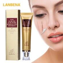 LANBENA 30ml Acne Scar Stretch Marks Remover Cream Skin Spots Repair Face  Treatment Blackhead Whitening