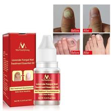 2019 Chinese Cream Nails Finger Toe Protector Fungus Treatment Herb Health Tools Onychomycosis Paronychia Infection Skin Care