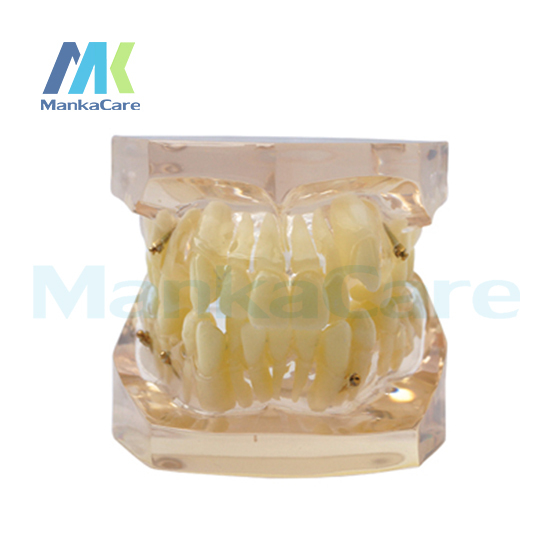 Manka Care -  24 pcs Tooth, Without bracket Oral Model Teeth Tooth Model