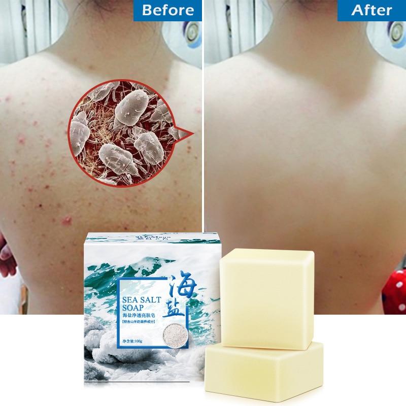 100g Sea Salt Soap Cleaner Whitening Soap Anti Mites Removal Pimple Pores Acne Treatment Goat Milk Moisturizing Face Wash TSLM1
