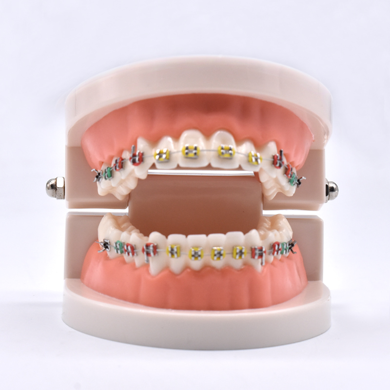 Dental Orthodontic Treatment Model With Ortho Metal Ceramic Bracket Arch Wire Buccal Tube Ligature Ties transparent dental orthodontic mallocclusion model with brackets archwire buccal tube tooth extraction for patient communication