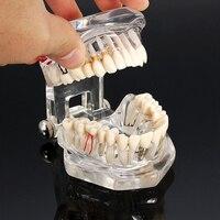 Bom Doença Dental Implant Modelo Teeth Com Restauração Ponte Dental Ortodontia Malocclusion Modelo Para a Ciência Médica