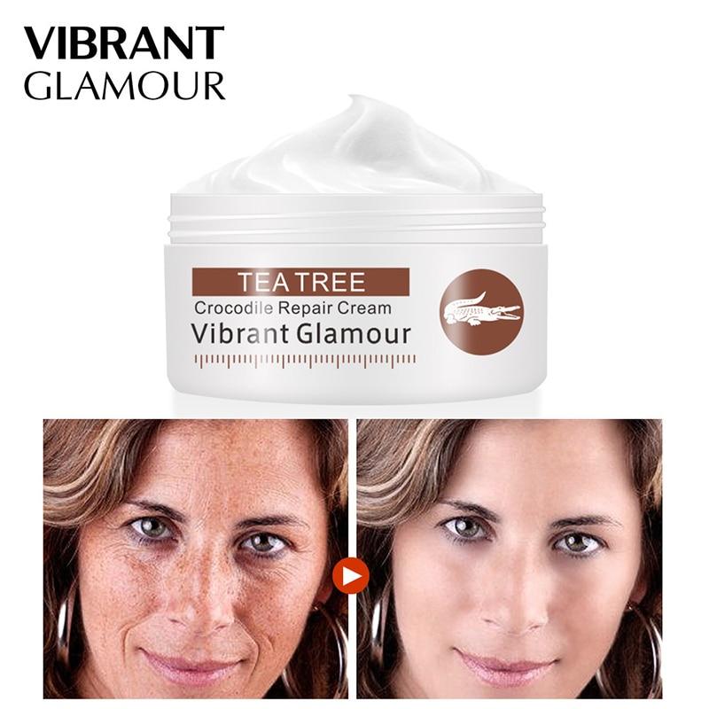 Crocodile Repair Face Cream 30g Acne Scar Removal Whitening Cream Anti-spots Acne Stretch Marks Skin Wrinkles Lines Repair Cream