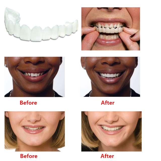 US $8 62  Aliexpress com : Buy Teeth Whitening Snap On Smile Teeth Cosmetic  Denture Instant Perfect Smile Teeth Fake Tooth Cover One Size Fits from