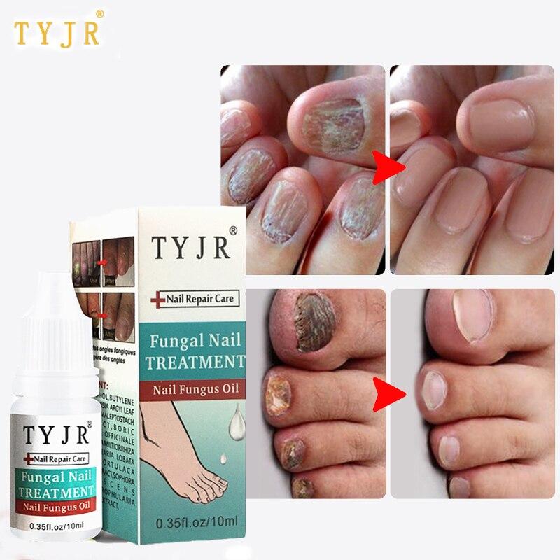 US $2.09 30% OFF|Herbal Antibacterial Nail Fungus Treatment Essential Oil  Serum Repair Foot Nail Toenail Fungal Nail Removal Cream Anti Infection-in  ...
