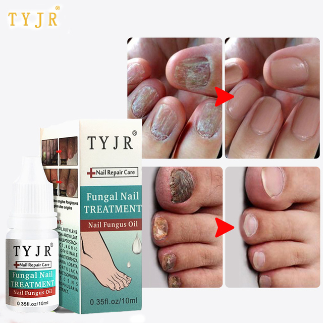 Herbal Antibacterial Nail Fungus Treatment Essential Oil Serum ...