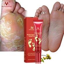 Травяной гриб для лечения Ногтей, против грибковой инфекции, для ног, противовоспалительный онихомикоз, китайский крем для лечения Ногтей