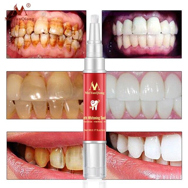 Cepillo de dientes blanqueador de dientes esencia higiene bucal Limpieza de suero elimina las manchas de placa blanqueador de dientes herramienta Dental pasta de dientes