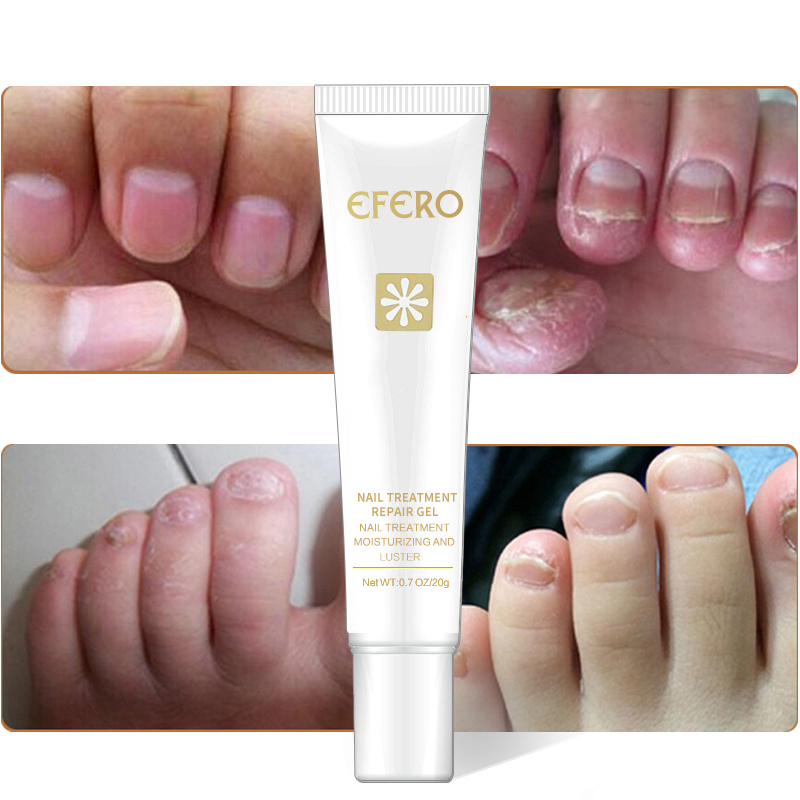 Efero Repair-Essence Removal-Gel Feet-Care Nail-Treatment Whitening Nails Anti-Infection