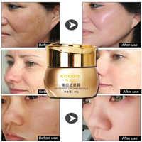 Crema para blanquear el Melasma pigmentación eliminación mancha removedor para el cuidado de la piel de aligeramiento Crema Blanqueadora koogis