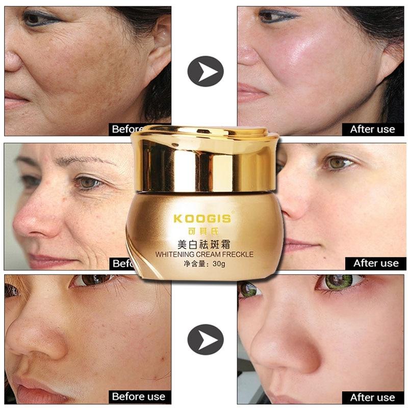 KOOGIS Whitening Cream Melasma Skin Dark Spot Remover For Face Frecle Lightening Skin Care Face Cream Moisturizing