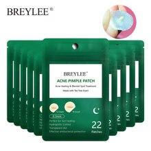 BREYLEE – Patch de boutons d'acné, masque facial, Peeling, traitement des boutons, outil d'élimination des imperfections, crème d'acné, soins de la peau, utilisation nocturne, 10 pièces