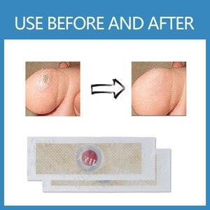 Image 5 - Emplastro médico para cuidados de pé, remoção de calos, verrugas plantares, espinho, cuidados de saúde, alívio da dor, patch de almofadas D1467, 24 peças