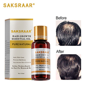 Hair Growth Essential Oils Hair Care Essence Original Authentic 100% Hair Loss Liquid Health Care Beauty Dense Hair Growth Seru(China)