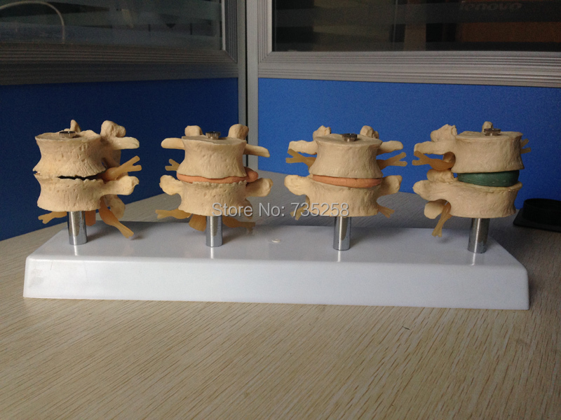 Lumbar spine lesions presentation model ,Intervertebral disc model ,Lumbar spine model hot advanced cutaway osteoporosis spine model lesions in the lumbar spine model