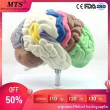 partición cerebro de Médico