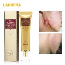 LANBENA крем для удаления угрей и шрамов, крем для восстановления кожи, крем для лица, отбеливающий эффект от угрей, экстракт женьшеня 65