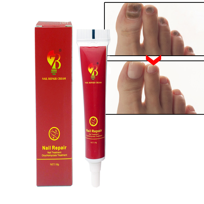 1pcs Nail FungusTreatment Ointment Treatment Onychomycosis Paronychia Anti Fungal Nail Infection Nail Fungus Plaster