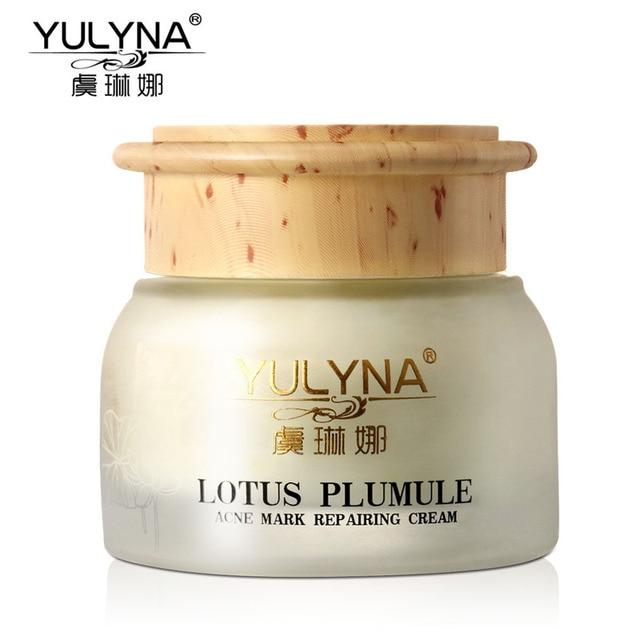 YULYNA Lotus Plumule Acne Cream Remove Scars Pimples Acne Treatment Moisturizing Whitening Anti Winkles Anti-Aging Cream