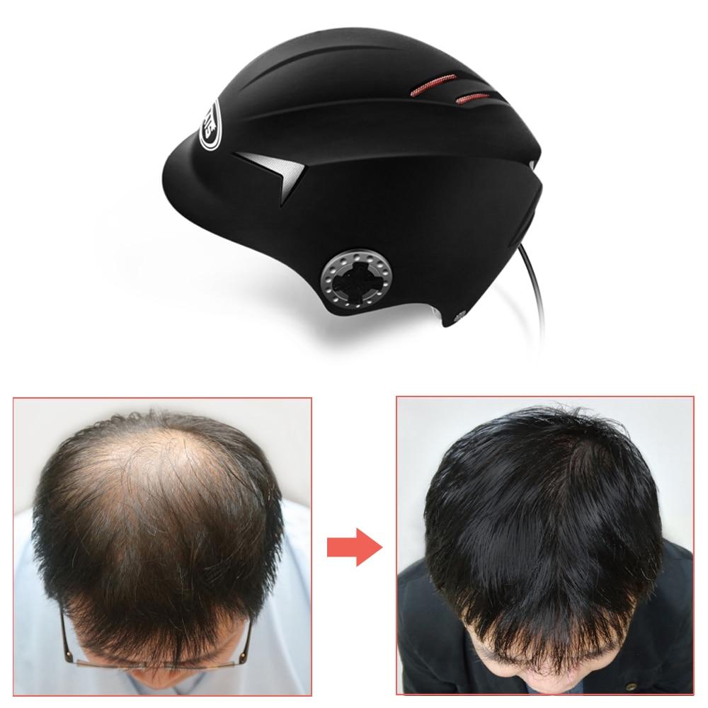 Casco para el crecimiento del cabello para hombres, casco láser para el crecimiento del cabello, 64/128, herramienta para el tratamiento de la pérdida del cabello por láser