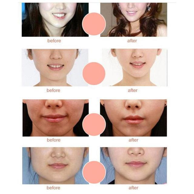 Miracle V Shape Mask Face Slim Chin Check Neck Lift Peel-off Mask V Shaper Mask Facial Slimming Bandage Mask Skin Care Dropship 3